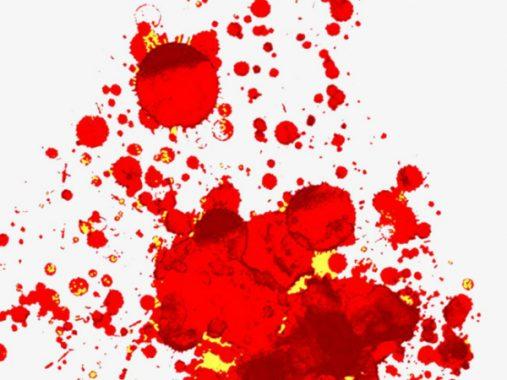 Nằm mơ thấy vết máu có ý nghĩa gì chơi xổ số con gì may mắn